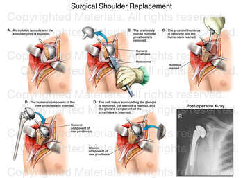 Surgical Shoulder Replacement