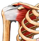 Rotator Cuff Tear, Anterior View