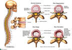 Classic Intervertebral Disc Injuries and Degenerative Disc Disease