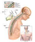 Multiple Cervical and Thoracic Epidural Steroid Injections