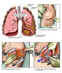 Left Chest Infection with Surgical Thoracotomy, Pleurectomy and Lung Lobe Resection