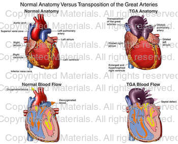 Normal Anatomy Versus Transposition of the Great Arteries