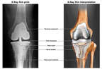 Post-operative Condition Following Total Knee Replacement