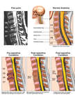 Traumatic Injury to the Cervical Spine with Surgical Repair