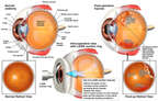 Severe Left Eye Injuries Following LASIK Surgery