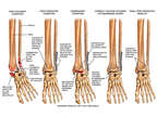 Post-accident Ankle Fracture with Inadequate Fixation and Disruption