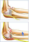 Normal vs. Abnormal Mechanics of the Elbow