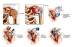 Continued Deterioration of the Shoulder with Surgical Replacement