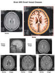 Brain MRI - Small Vessel Disease