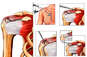Right Shoulder Injuries with Arthroscopic Repairs