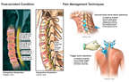 C3-C7 Cervical Spine Injuries with Injections for Pain Management