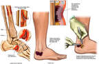 Foot and Ankle Injuries and Debridement of Necrotic Tissue