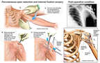 Left Shoulder Fixation Procedure
