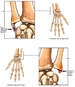Bilateral Wrist Injuries