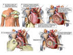 Endocarditis with Mitral Valve Replacement Surgery