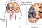 Areas of Temporal and Parietal Lobes Affected by Stroke