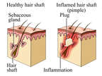Pimple (Acne) - Normal vs Inflamed Hair Shaft