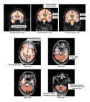 CT Scans of the Brain