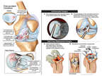 Left Knee Injuries and Surgeries