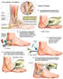 Left Ankle Injuries with Surgical Repairs