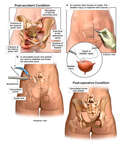 Crush Injuries of the Pelvis with Surgical Repair