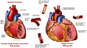 Hypertension and Arteriosclerotic Cardiovascular Disease