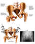 Multiple Pelvic Fractures with External Fixation