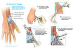 De Quervain's Disease of the Wrist with Surgical Release of the Fibrosis