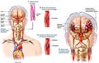Bilateral Carotid Artery Dissections with Subsequent Brain Injuries