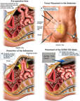 Laparoscopic Ventral Hernia Repair