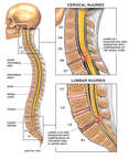 Post-accident Cervical and Lumbar Spinal Disc Injuries (C6-7 and L5-S1)