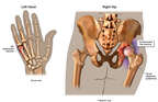 Post-accident Fractures to the Hand and Right Hip