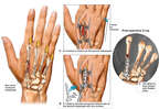 Non-union of Second Metacarpal with Additional Surgical Repairs