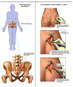Chronic Dysfunction of the Sacro-iliac Joint with Placement of Bone Grafts