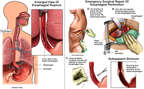 Rupture of the Esophagus with Surgical Repairs
