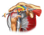 Anterior, Three Quarter View of Shoulder with Arthroscopic Instruments