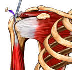 Repair of Rotator Cuff Tear, Anterior View
