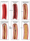 Progression of Blood Vessel Blockage (Blocked Artery)