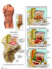 Progression of Spinal Infection
