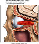 Post-accident Injuries to the Optic Nerve, Abducens Nerve (Cranial Nerve VI) and Lateral Rectus Eye Muscle