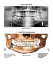 Deterioration of the Jaw Following Removal of the Wisdom Teeth