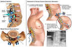 Multiple Attempts at Lumbar Spine Pain Management