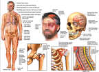 Male Figure with Facial-Scalp Injuries, Brain INjury, and Fractures to the Hip, Shoulder and Neck
