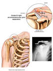 Post-accident Right Shoulder Clavicular Separation with Surgical Repair