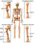 Skeletal Figure with Post-accident Fractures and Surgical Fixation of the Left Arm and Right Leg