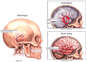Accident -related Head Injuries