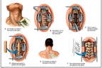 Anterior and Posterior Cervical Fusion