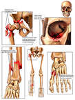 Orthopedic Injures to the Right Hip, Orbit, Lower leg and Left Foot