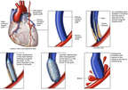 Placement of Coronary Stent with Vascular Rupture