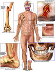 Male Figure with Post-accident Injuries to the Scalp, Chin, Teeth, Right Upper Arm and Ankle